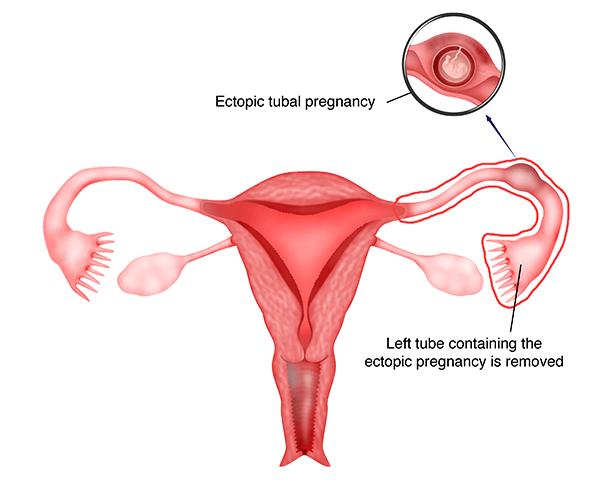 Bab 26 Bedah Laparoskopi Untuk Kehamilan Ektopik Melaka Fertility Selva S Fertility Obstetrics And Gynaecology Clinic
